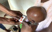 월드비전 영양실조 소말리아 기아 남수단 기근